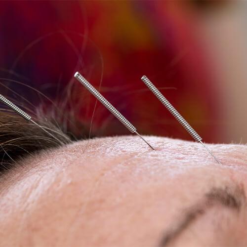 Gesundheitsmagnet.de - Naturheilpraxis Martina Altenhövel - Akupunktur