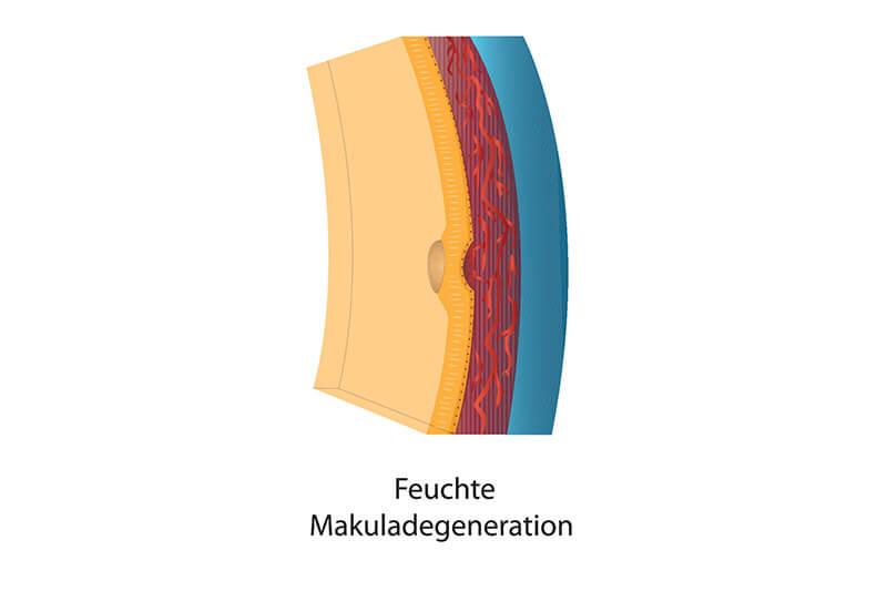 Gesundheitsblog Feuchte Makuladegeneration